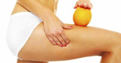 piernas salud bienenstar